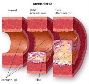 penampakkan-arteri-pada-kolesterol